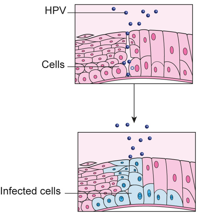 hpv virus and cell changes)