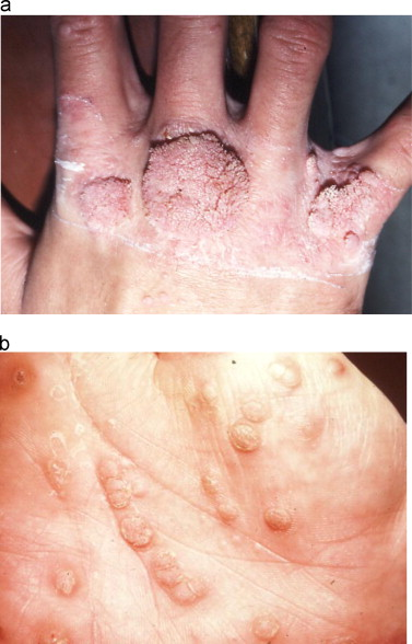 hpv causes hives)