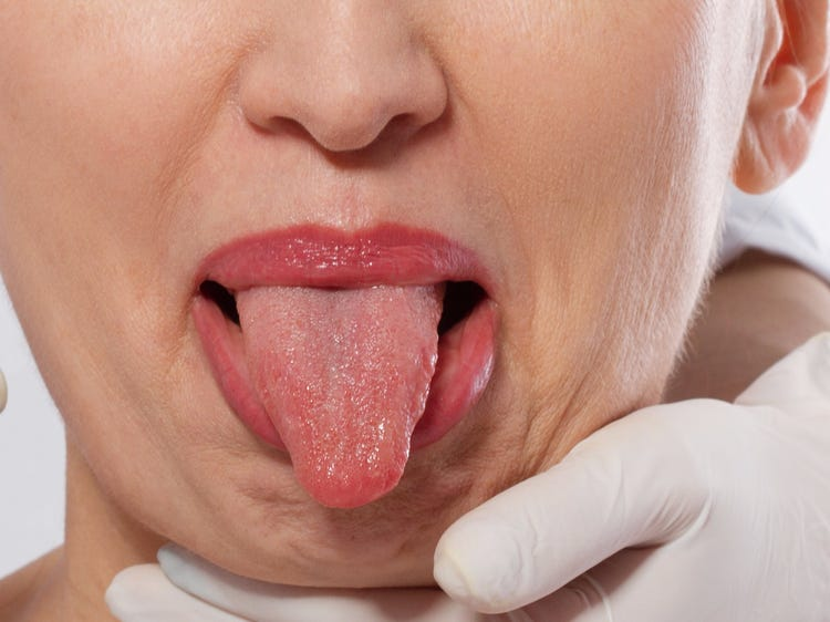 Inflammation of tongue papillae, Cancer hpv homem