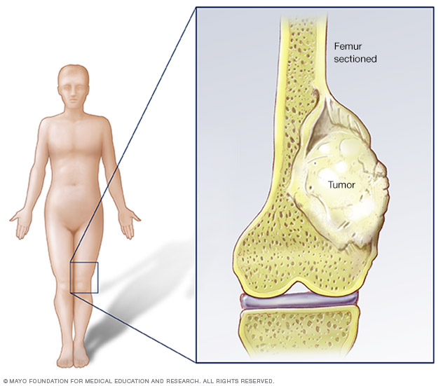 Cancer and sarcoma,