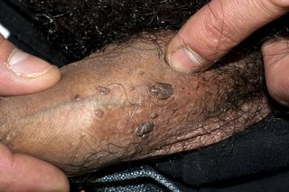 warts on hands nhs)