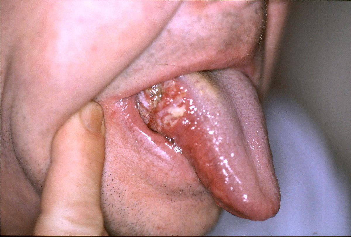 squamous papilloma cheek