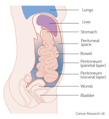 cancer in peritoneal wall)