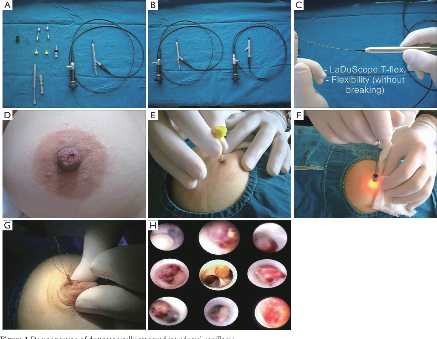 Intraductal papilloma excision procedure. Affiliations