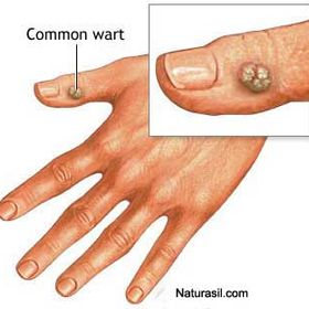 warts on hands dream)