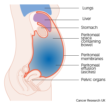ovarian cancer with ascites)