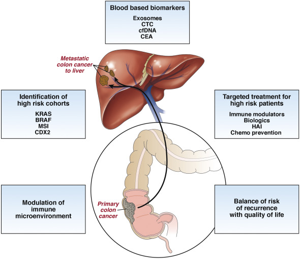metastatic cancer from colon to liver)