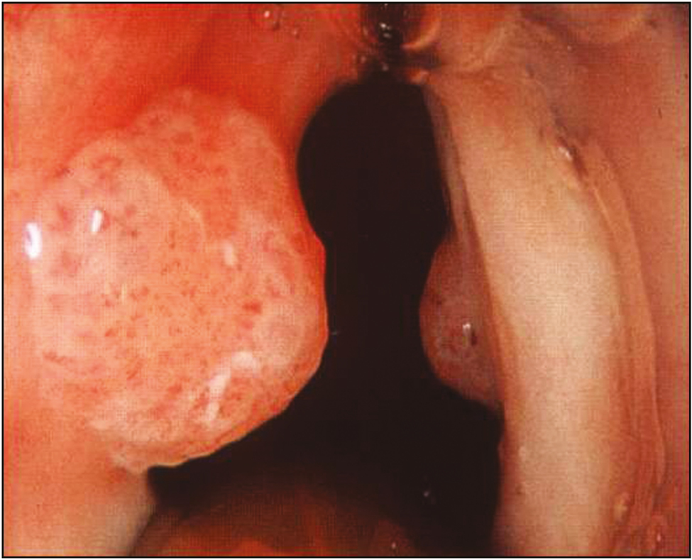resection of laryngeal papilloma)