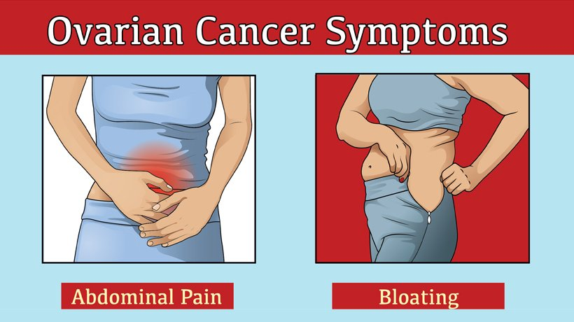 cancer and abdominal bloating cancer mamar de femei