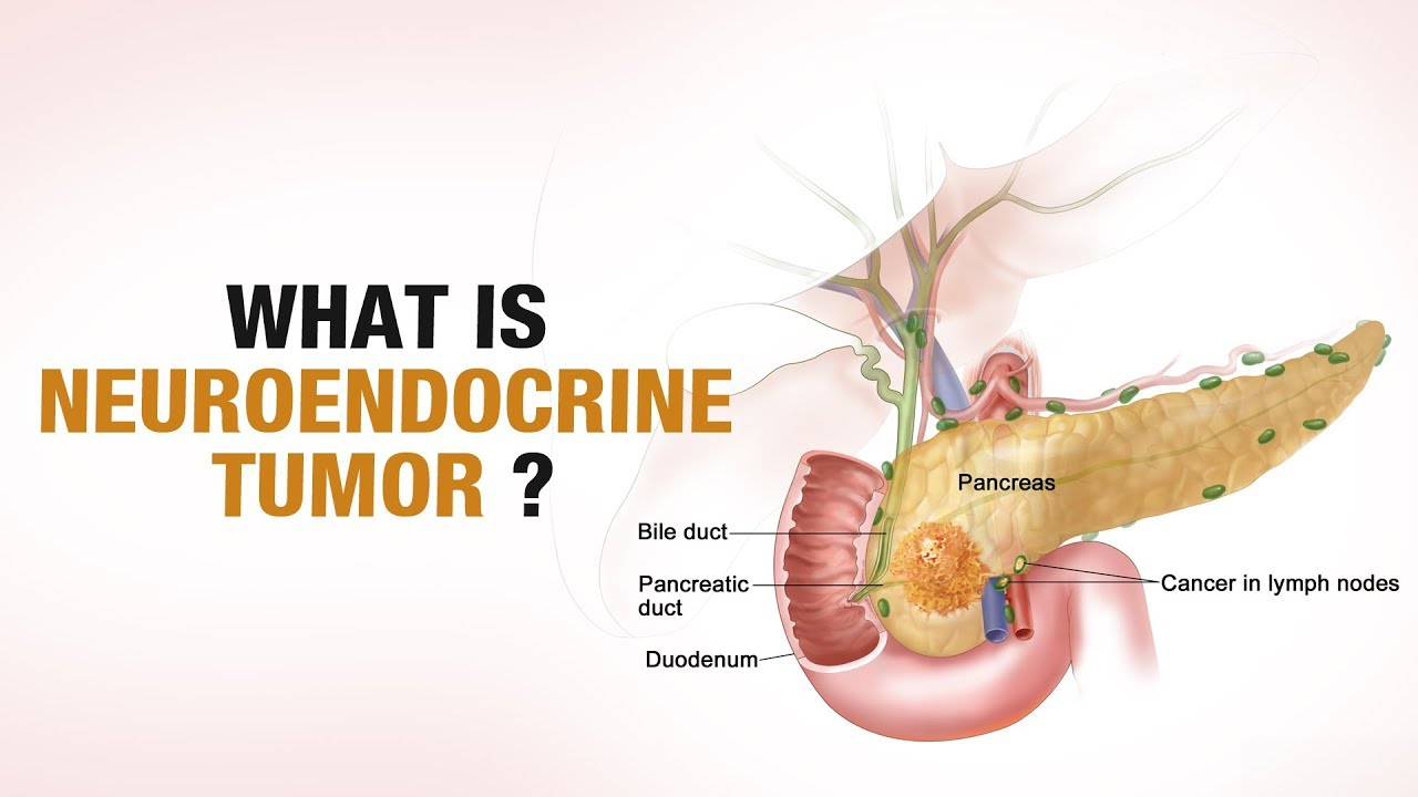 neuroendocrine cancer in lymph nodes