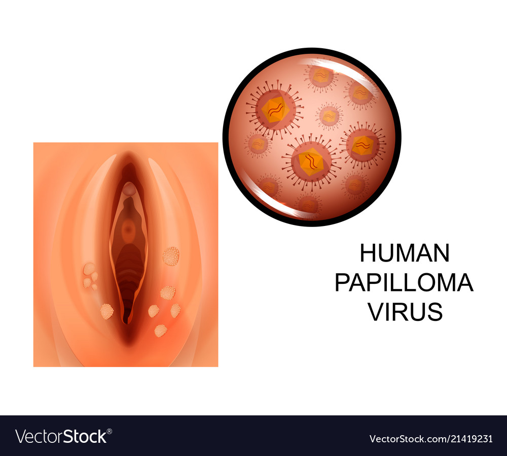 human papilloma virusu as s)