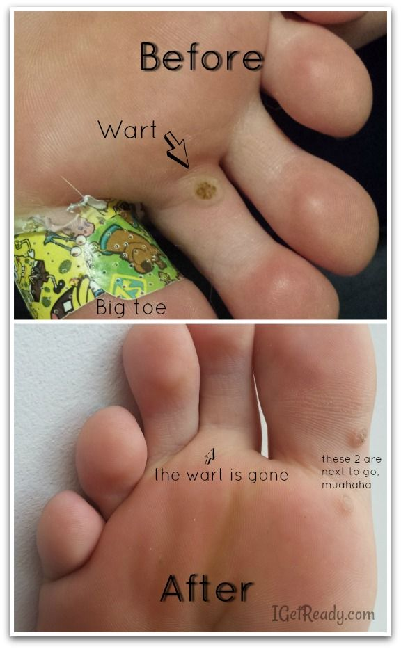 warts treatment with duct tape)
