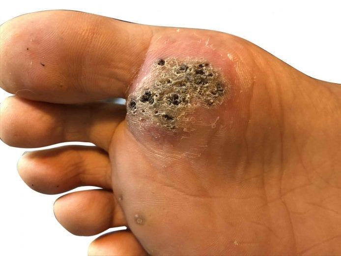 wart on foot removal)