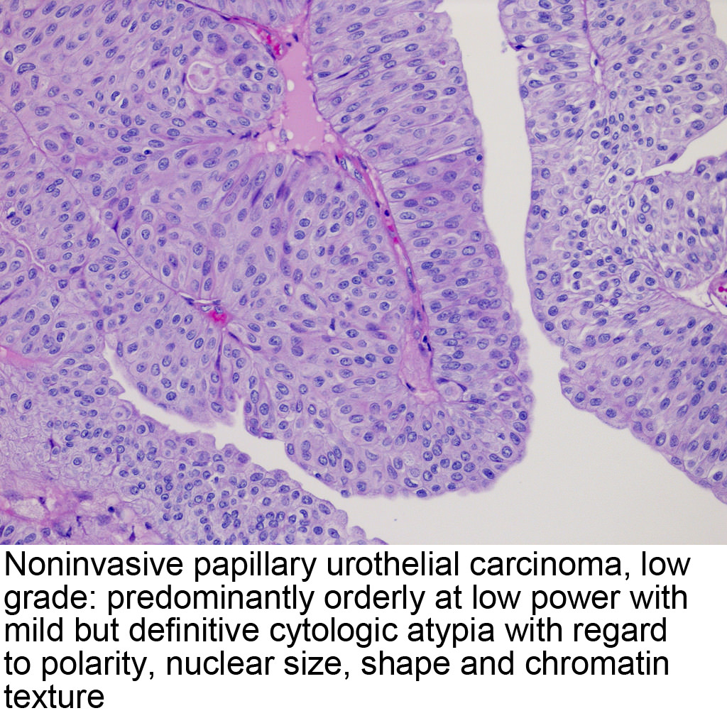 papillary urothelial mean)