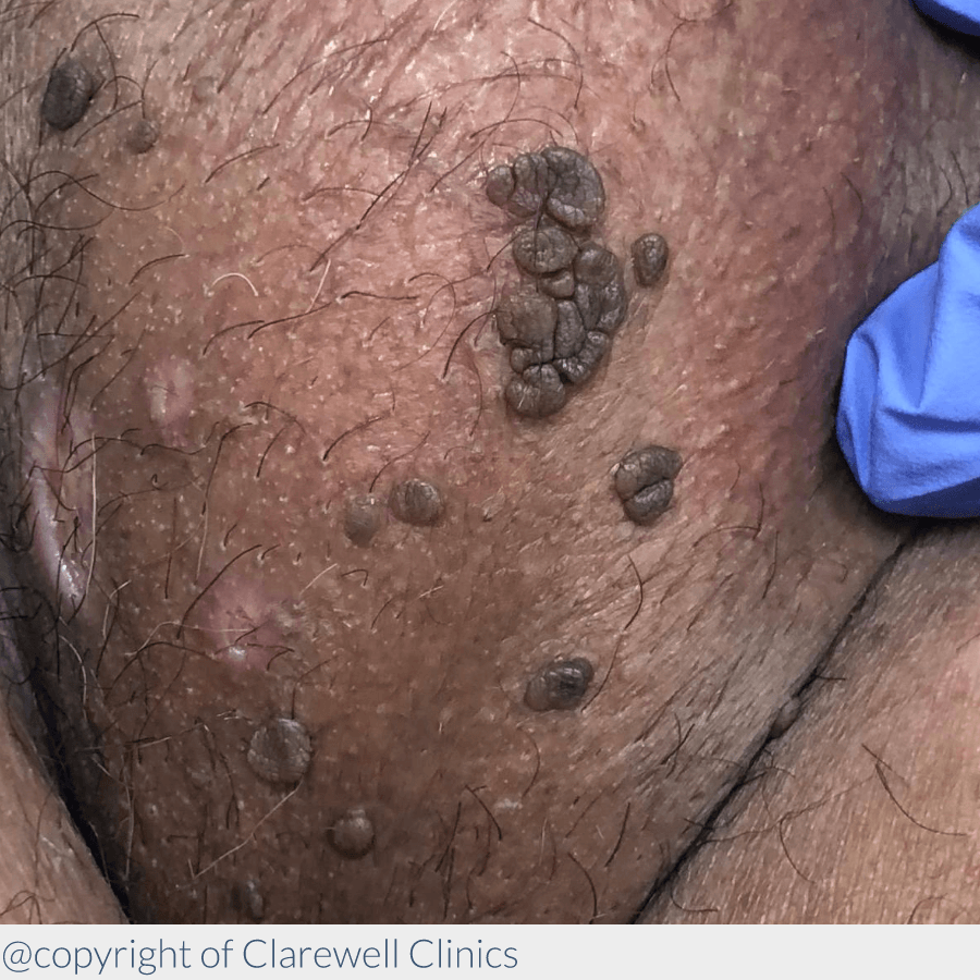 hpv skin discoloration hpv ou herpes genital