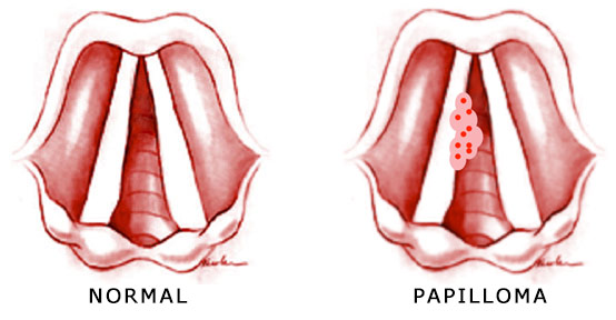 papilloma means cancer