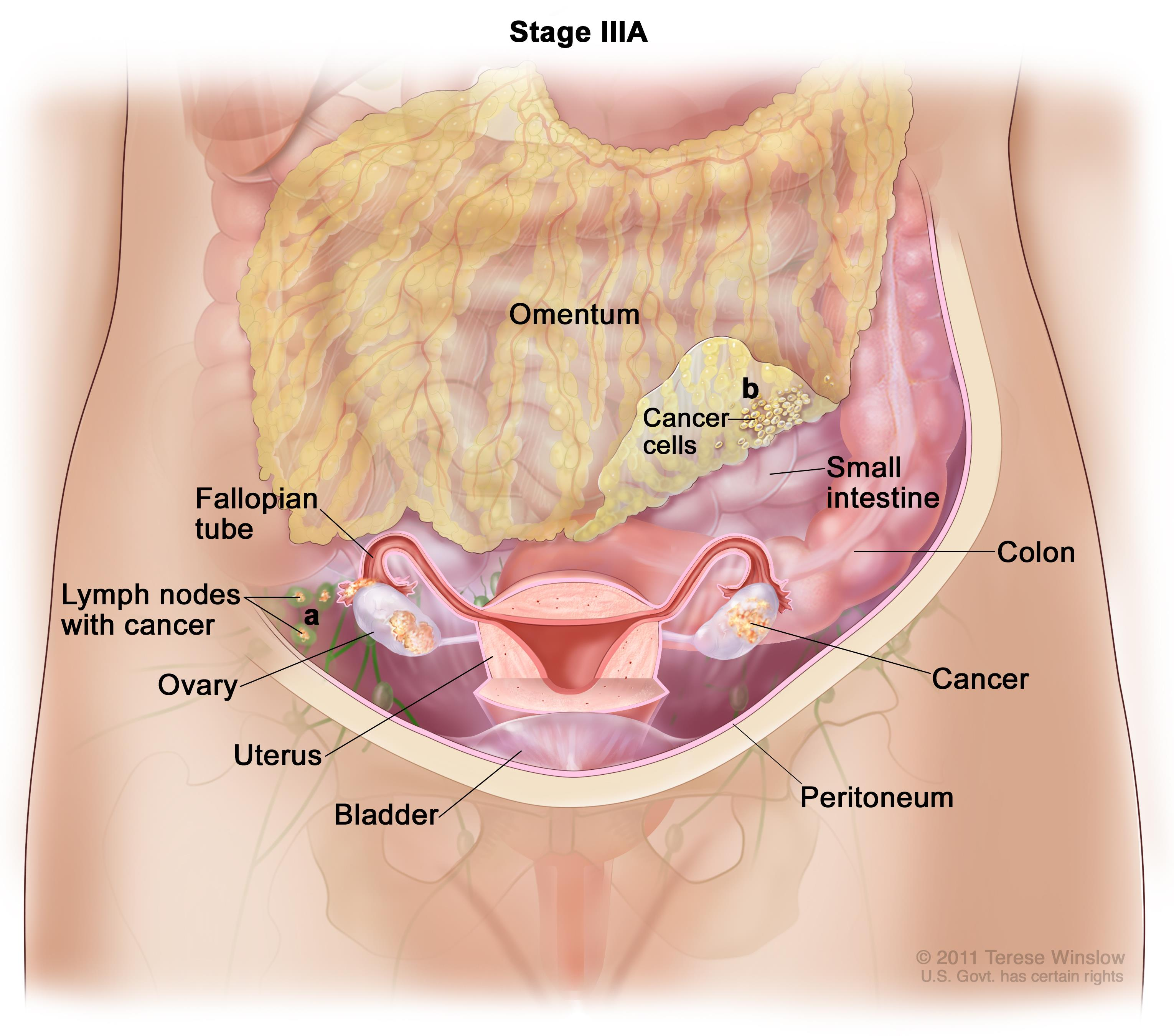 peritoneal cancer no treatment