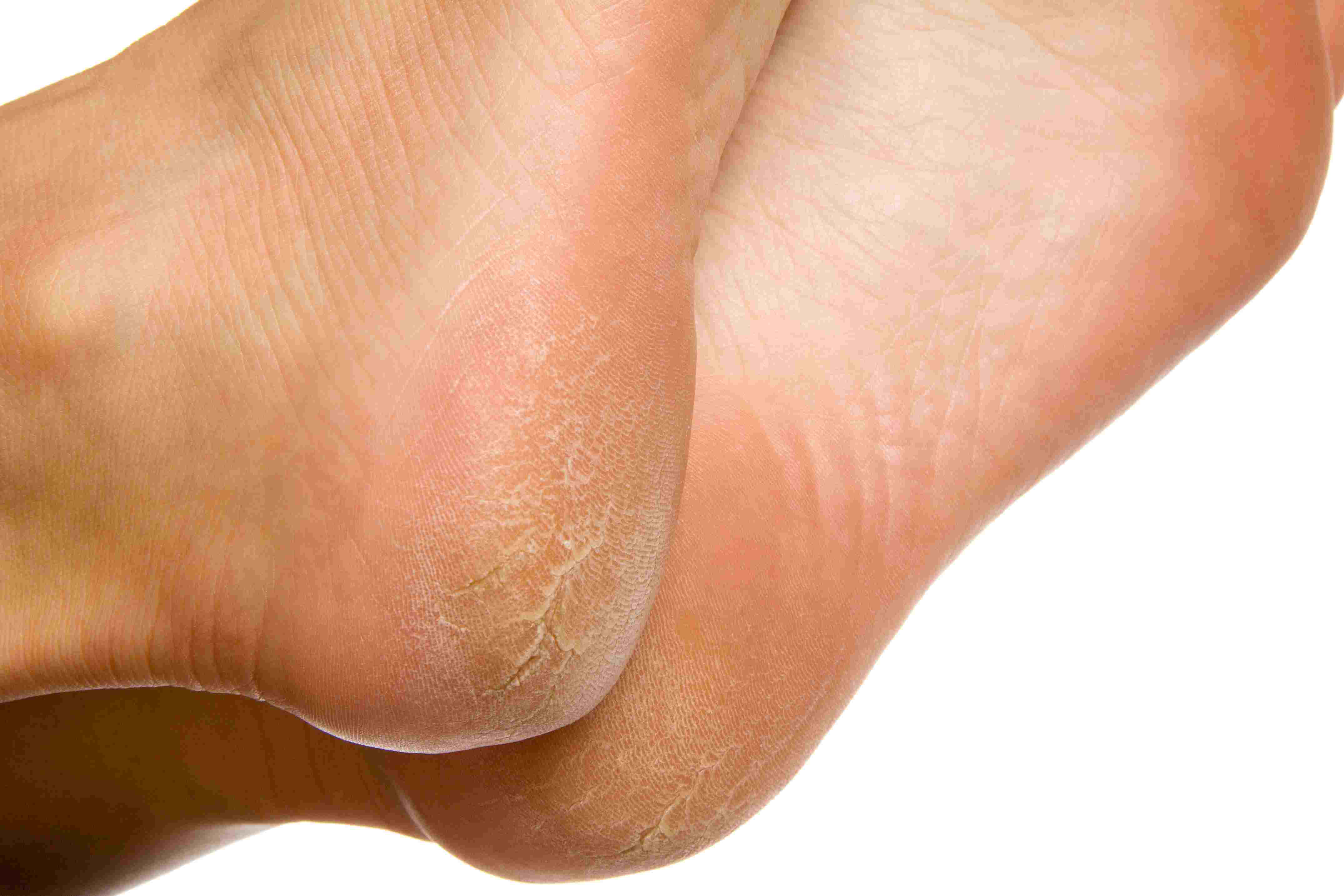 wart foot sole)