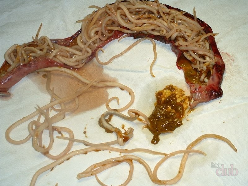 Helminth infection in america
