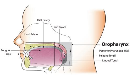 hpv cancer oropharyngeal