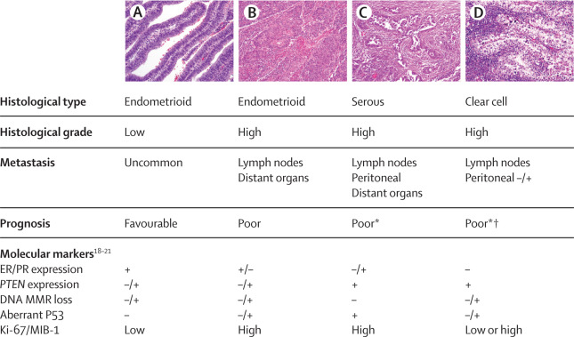 endometrial cancer types)