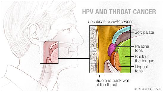 hpv throat cancer male
