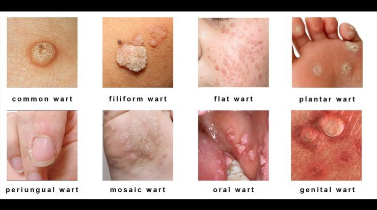 common warts hpv type