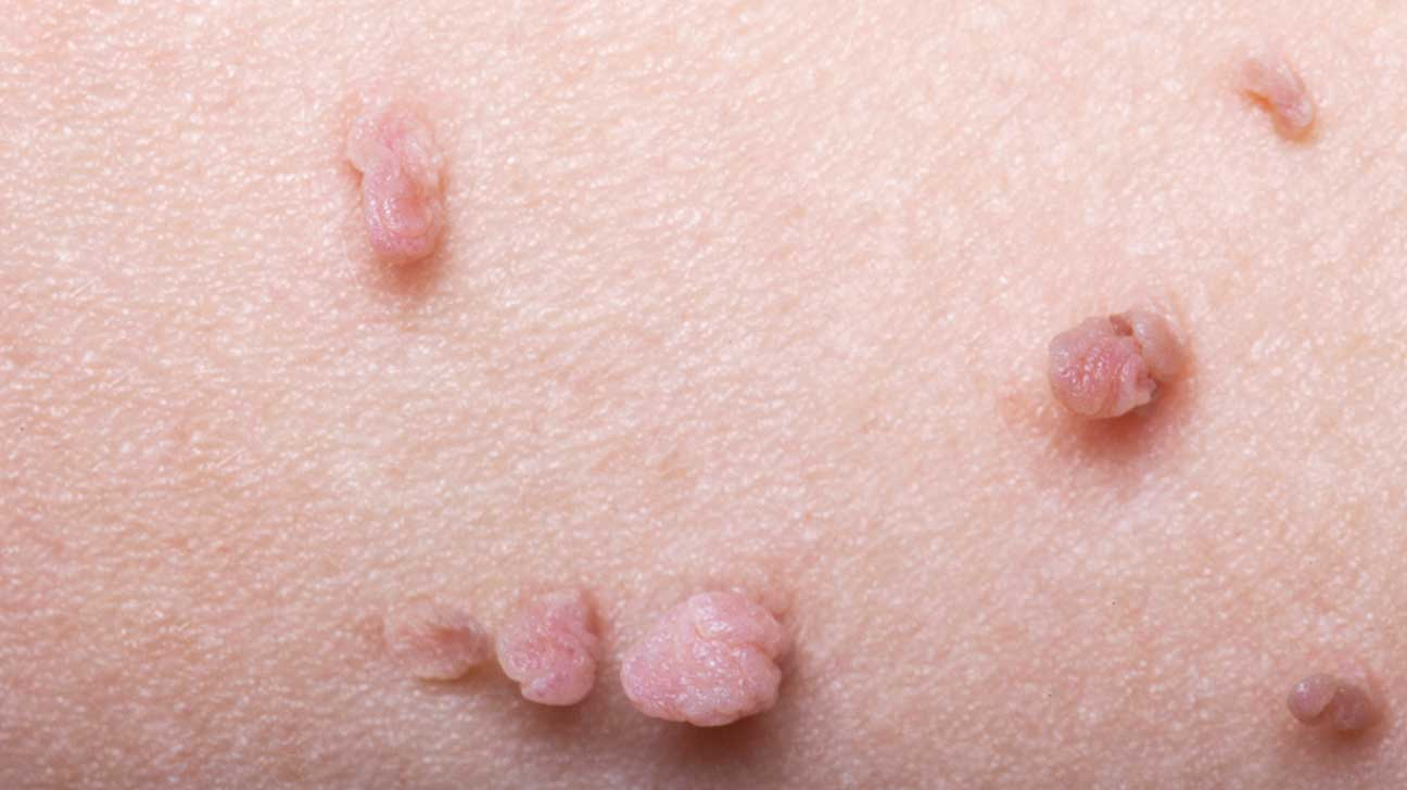 Papilloma skin growth