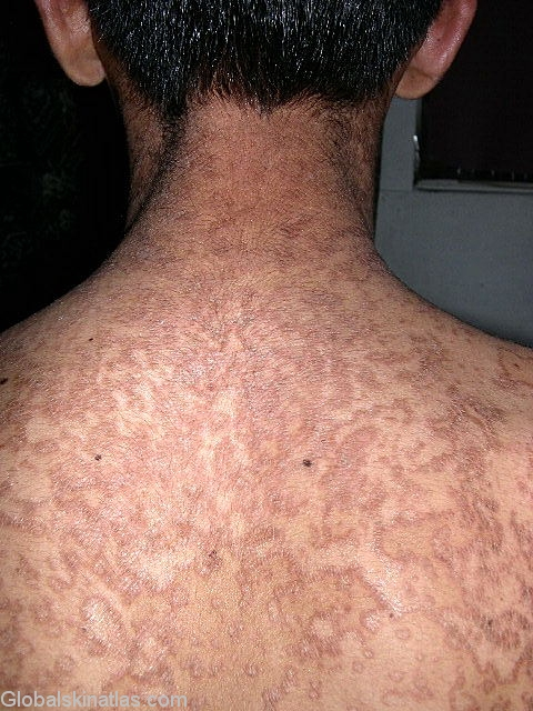 Treatment of confluent and reticulated papillomatosis, Injecții diclofenac din psoriazis -