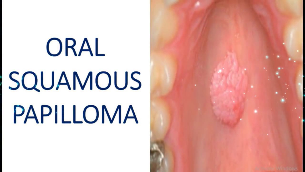 squamous papilloma lip icd 10