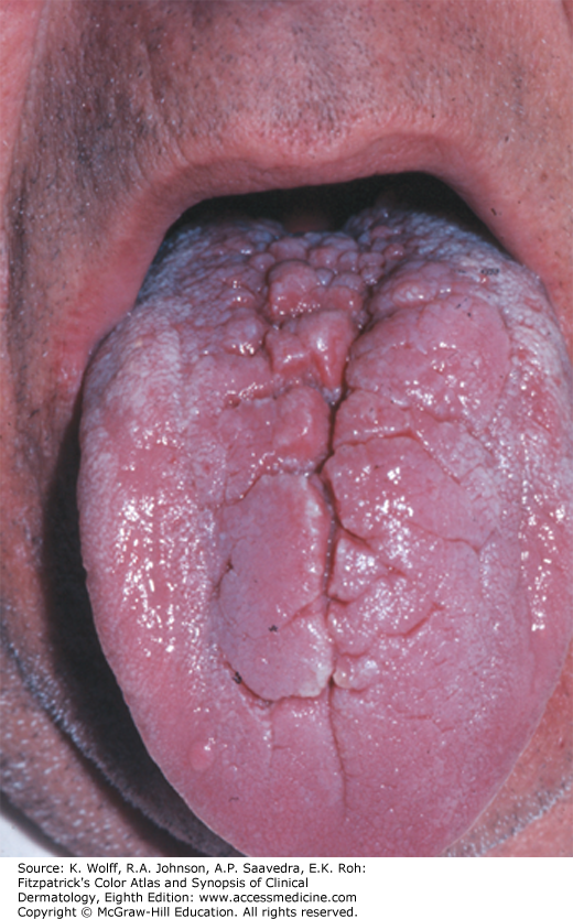 squamous papilloma mouth icd 10)