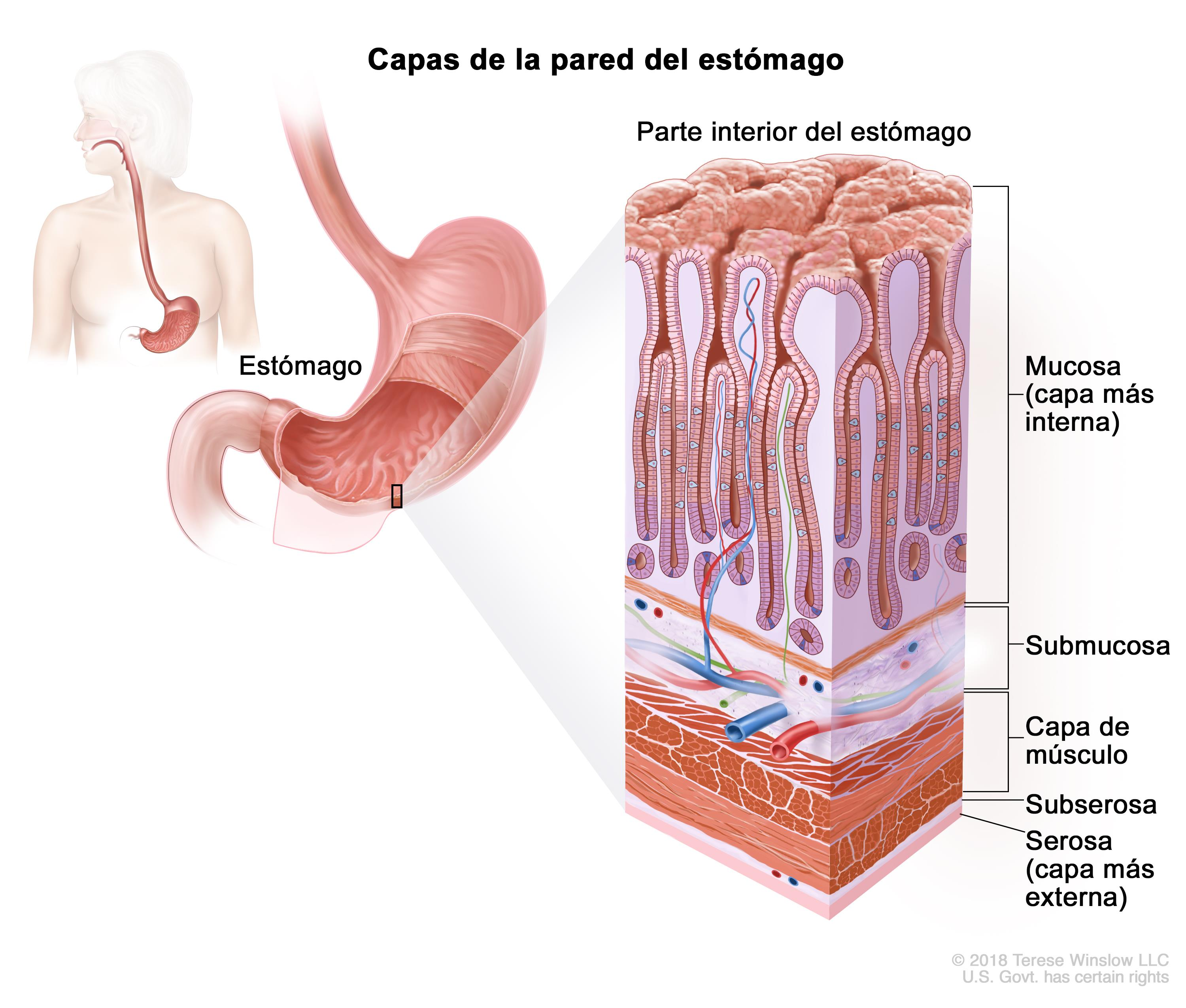 cancer parede abdominal