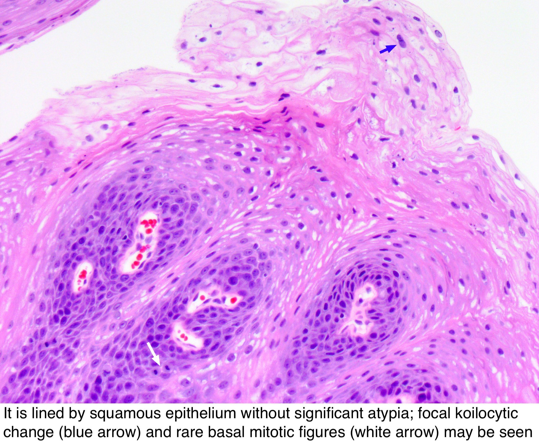 squamous papilloma of esophagus