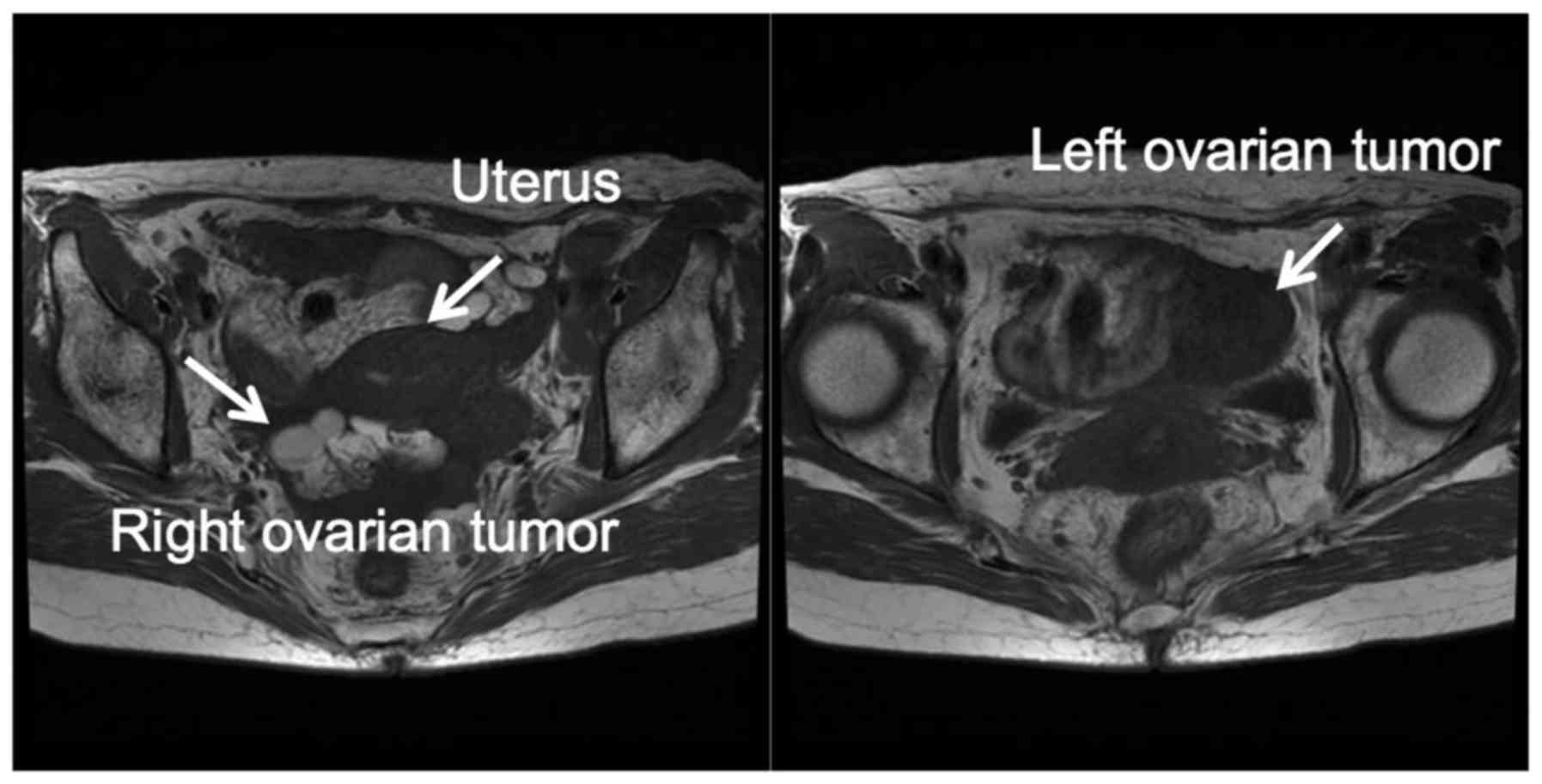 ovarian cancer mri)