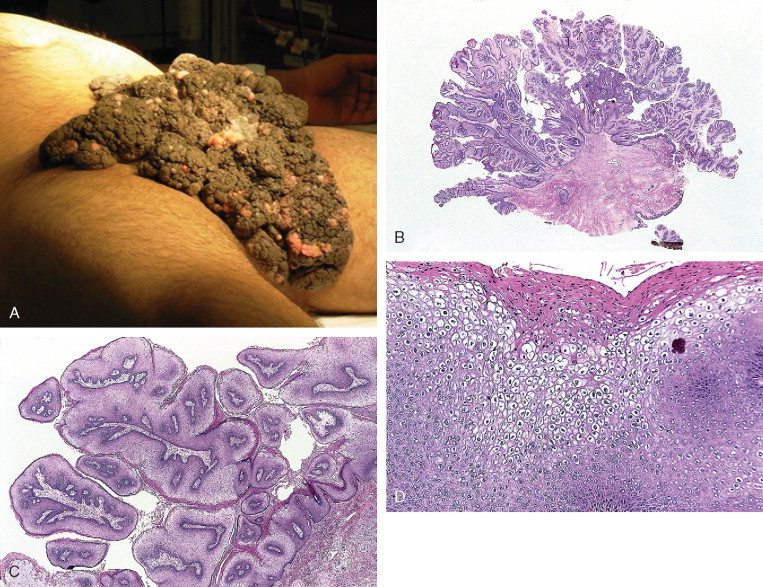 Hpv condylomata acuminata. Old and new therapies for cutaneous and anogenital warts
