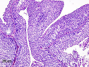 Papillary urothelial neoplasm of low malignant potential histology