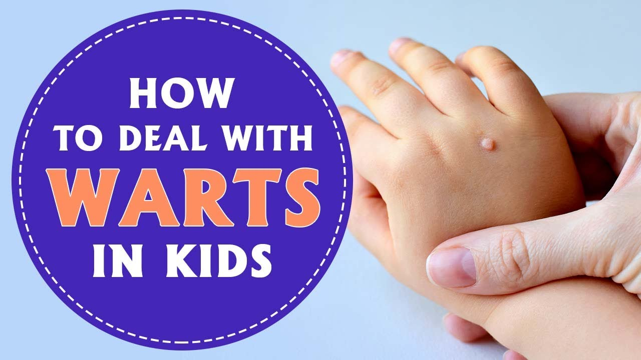 warts on hands and feet during pregnancy