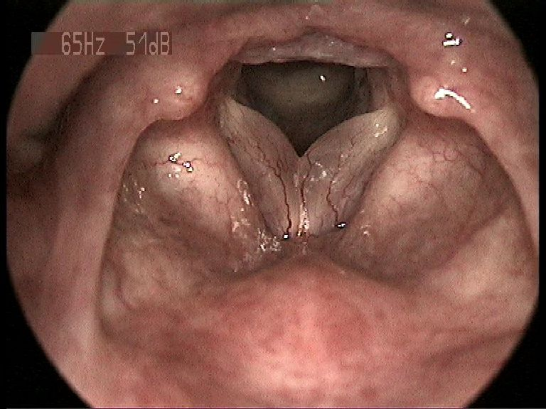 ___cuprins, Benign squamous papilloma tongue icd 10