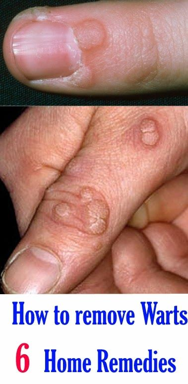 Removal of facial warts by home remedy