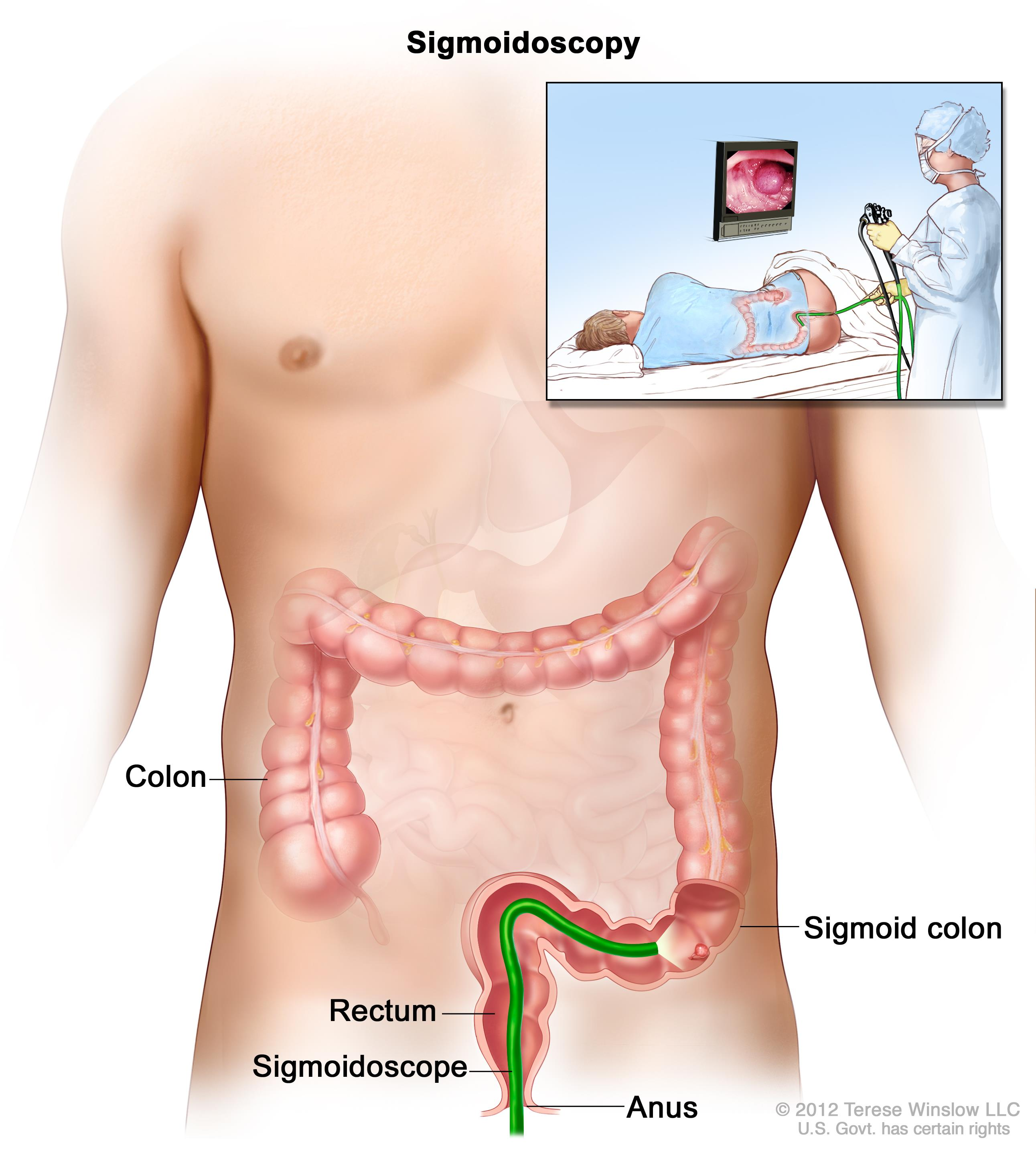 cancer colon definition)