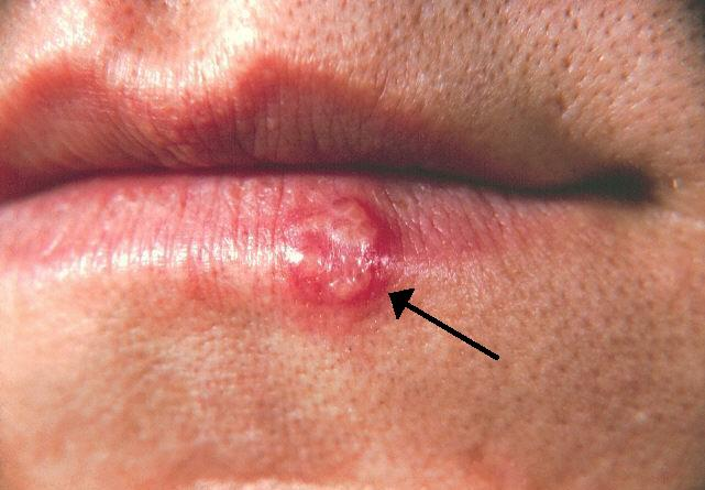hpv herpes bucal)
