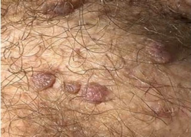 Hpv virus after treatment, Papilloma lingua sintomi