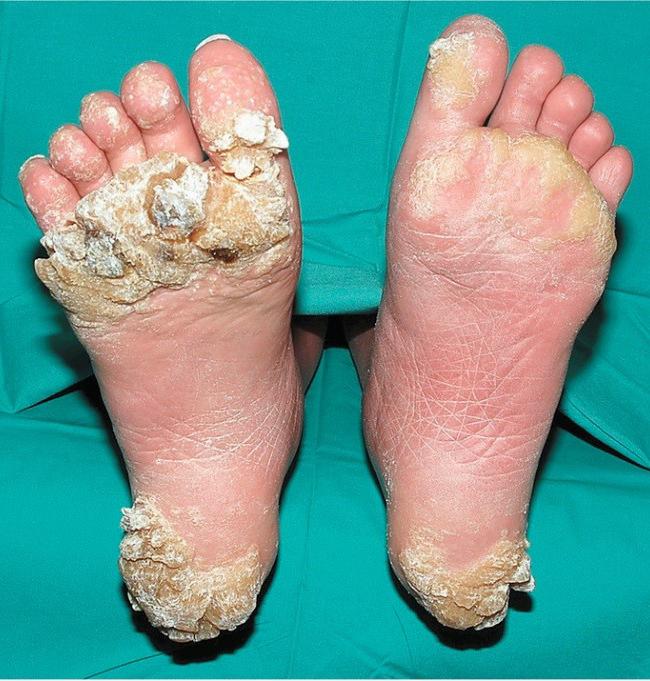 Hpv warts on the feet