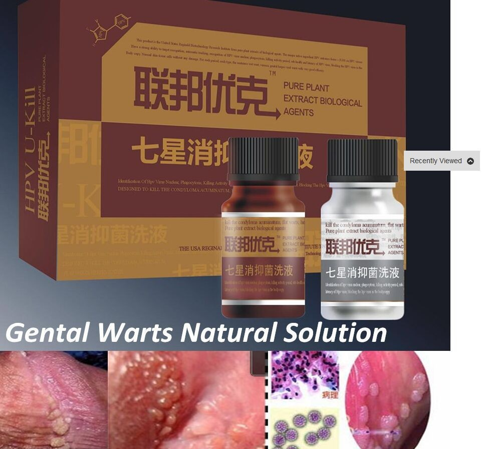 condyloma acuminata genital treatment