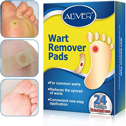 wart under foot removal)