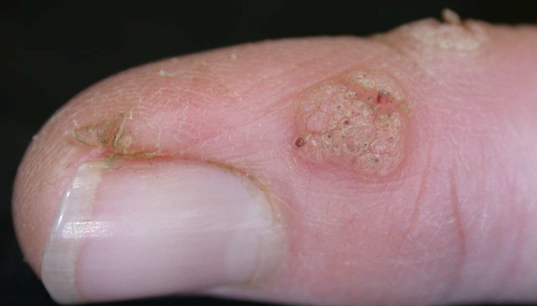 Herpes genital papilloma - Hpv and finger warts