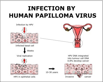 The cancer caused by the human papillomavirus (hpv) is in which group of cancers - eng2ro.ro