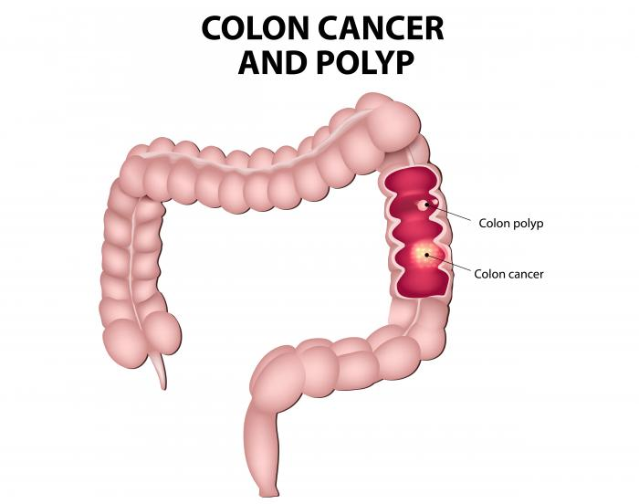 i cancer colorectal)