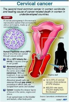 Will hpv cause ovarian cancer - eng2ro.ro