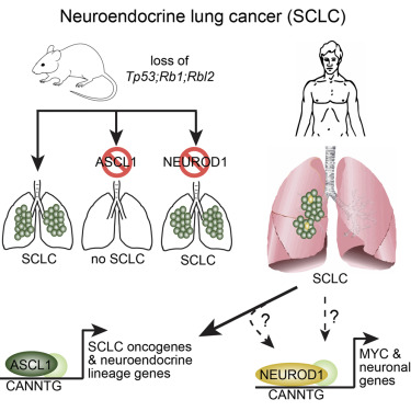 neuroendocrine cancer lung)